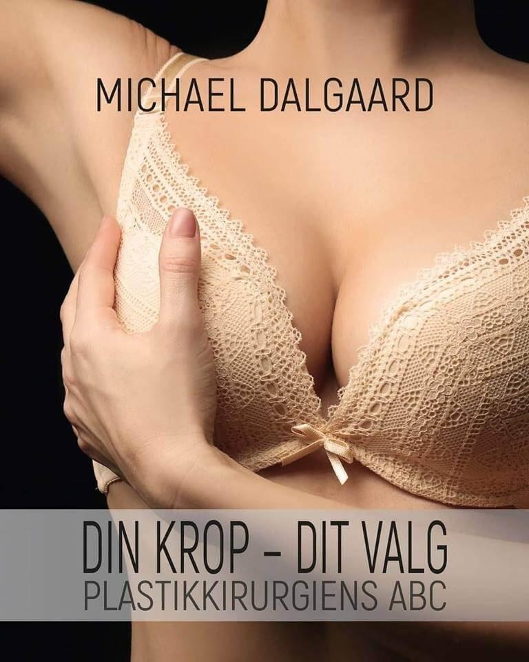 michael dalgaard 1 bifald